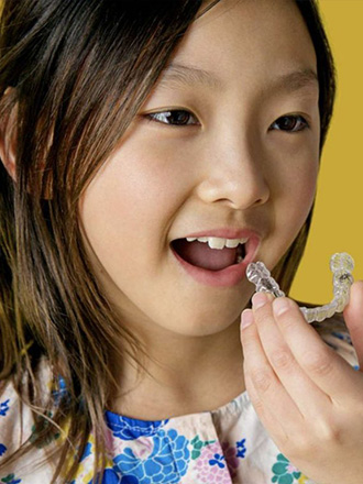 invisalign first for children
